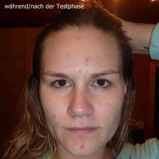too cool for school EGG-ssential Fluid Moisturizing Toner - Hautbild während / nach der Testphase
