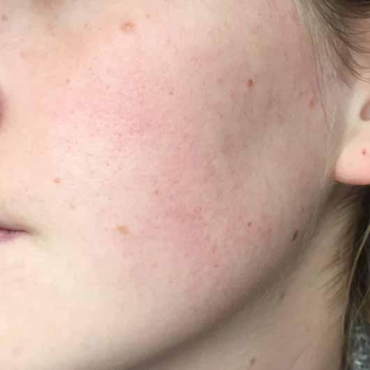 DR. SCHELLER Argan & Amaranth Anti-Falten Pflege Tag LSF 10 - Hautbild vor der Testphase