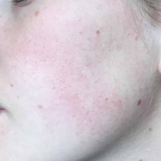 DR. SCHELLER Argan & Amaranth Anti-Falten Pflege Tag LSF 10 - Hautbild nach 4 Wochen Testphase