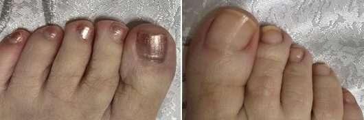 Nägel vor/nach der Anwendung des ebelin Professional Nagellackentferner Acetonfrei Intensive Care