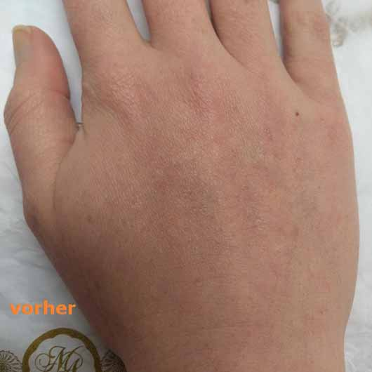 Mlle Agathe Regenerierende Handpflege - Haut vorher
