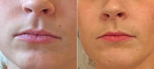 Lippen ohne Produkt (links) // Lippen mit Pixi Tinted Brilliance Balm (rechts)
