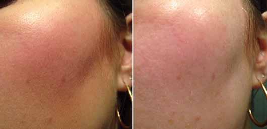 Garnier SkinActive Mizellen Reinigungswasser All-in-1 - Gesicht vor und nach der Reinigung