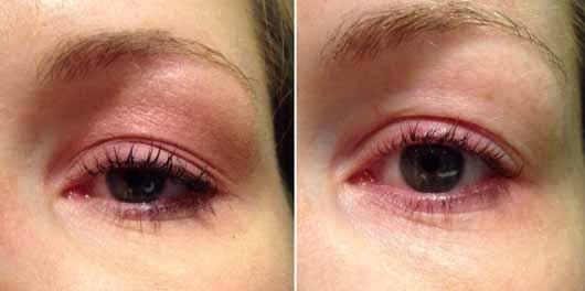 Garnier SkinActive Mizellen Reinigungswasser All-in-1 - Augen vor und nach der Reinigung