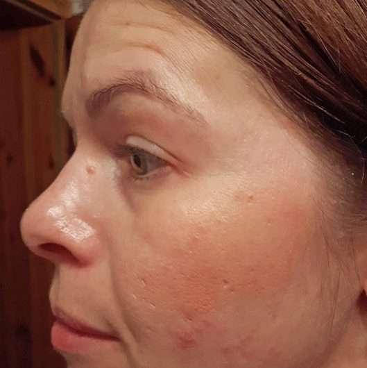 Haut nach dem Verblenden mit dem Pinsel