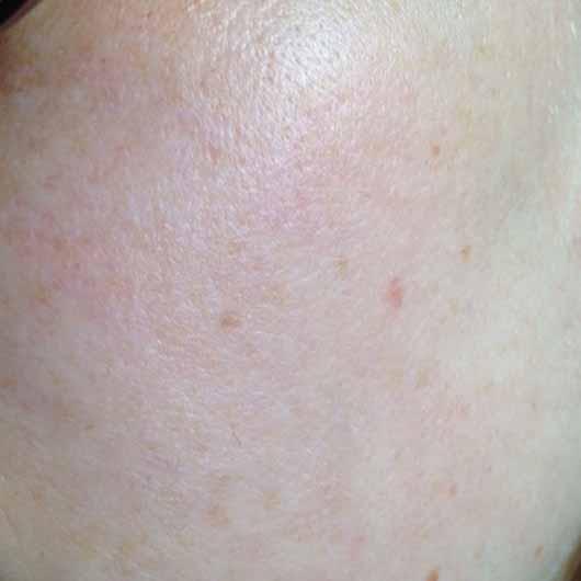 Garnier SkinActive Mizellen Reinigungswasser All-in-1 - Haut vor der Anwendung