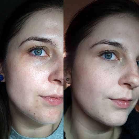 IT Cosmetics Confidence In A Cream rechts: Vor der ersten Anwendung, links: nach ca. 4 Wochen (2x täglich aufgetragen)