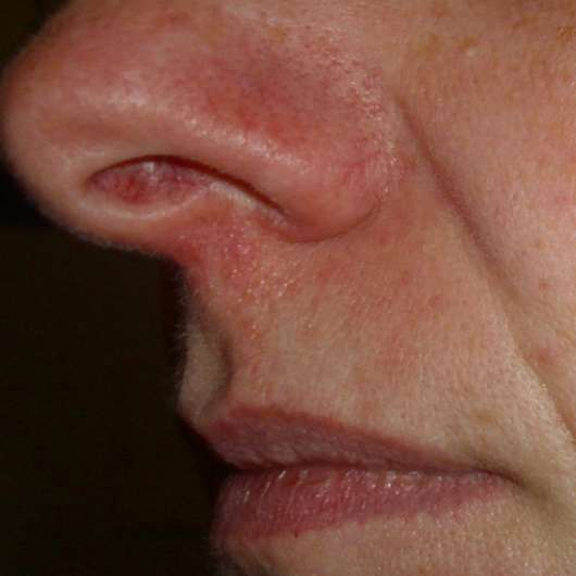 Test - Lippenpflege - LETI letibalm Nase und Lippen