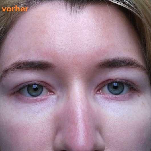 Augenpartie vor dem Test - SIRIDERMA pure Basische Augenfältchen Creme