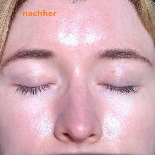 Augenpartie nach dem Test - SIRIDERMA pure Basische Augenfältchen Creme