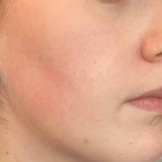 The Botanical Facial Cream - Gesicht vorher