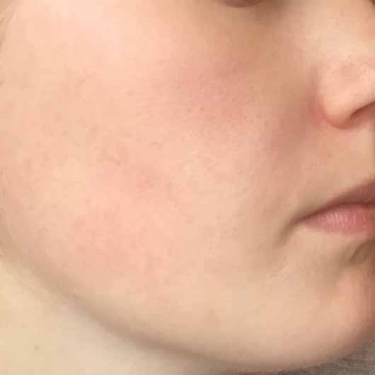 The Botanical Facial Cream - Gesicht nachher