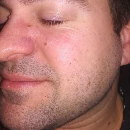 Haut zu Testbeginn - DERMAPLAN Tonic Clear