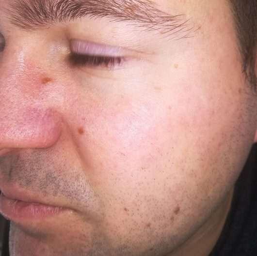 Haut nach 4-wöchigem Test - DERMAPLAN Tonic Clear