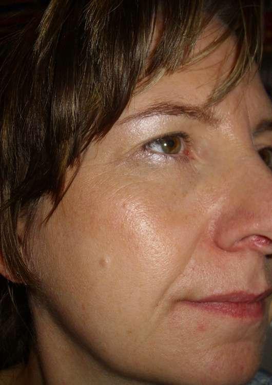 DermaSel Totes Meer Tuchmaske Kaktusmilch - Gesicht vor der Anwendung