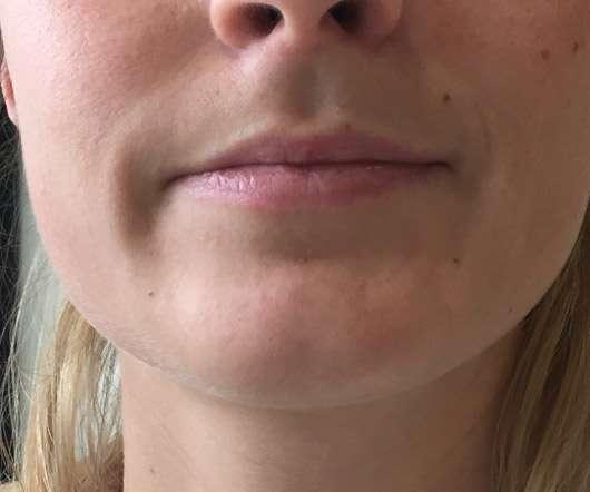 Karl Lagerfeld + ModelCo Lipbalm - Silver Case (LE) - Lippen ohne Produkt