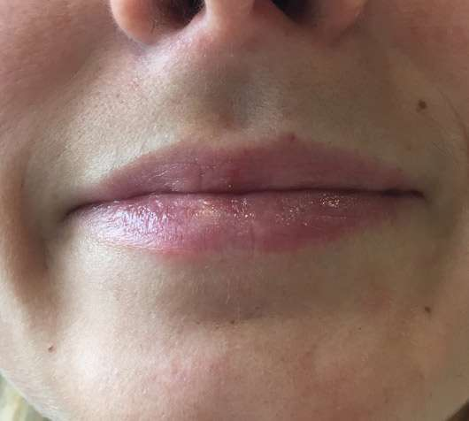 Karl Lagerfeld + ModelCo Lipbalm - Silver Case (LE) - Lippen mit Produkt