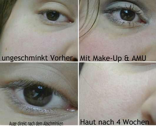Vorher/Nachher Vergleichsbilder