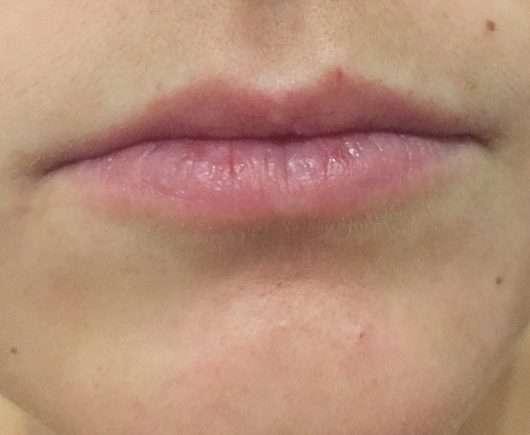 Lippen vor der Anwendung des Mary Kay Satin Lips Shea Zucker-Peelings