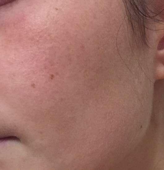 MOY by Stefanie Giesinger Cleansing Gel - Haut nach der Anwendung