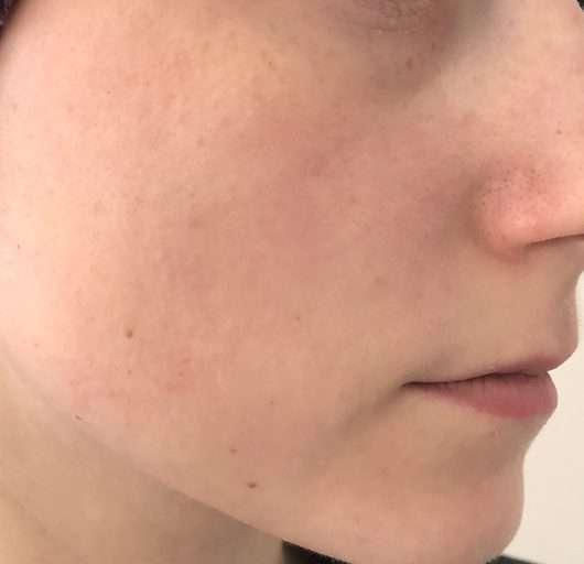 Haut nach 4-wöchigem Test - Pixi Glow Tonic Exfoliating Toner