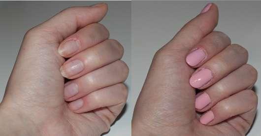 SensatioNail Express Gel Starter Set, Farbe: Made Him Blush - Nägel vorher und nachher