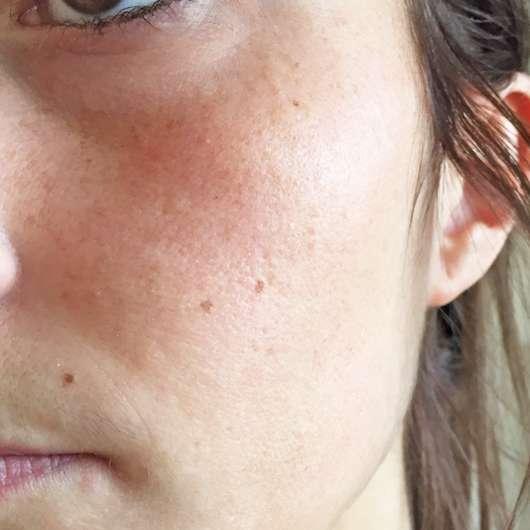 Balea Sugar Scrub (normale und trockene Haut) - Haut vor der Anwendung