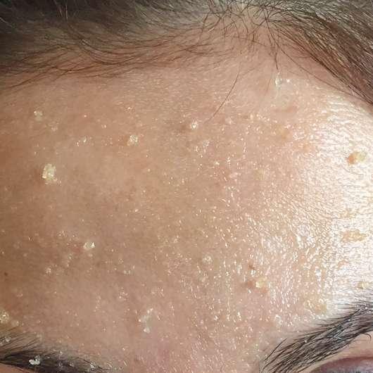 Balea Sugar Scrub (normale und trockene Haut) - Peelingkörner auf der Stirn