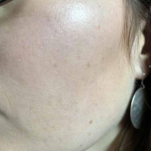 Dr. Jart+ Ceramidin Serum - Haut vorher