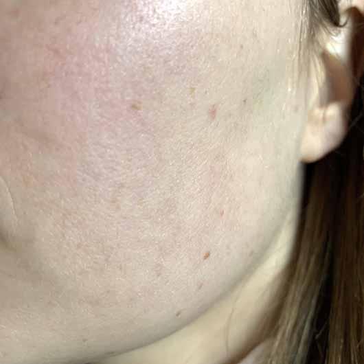 Dr. Jart+ Ceramidin Serum - Haut nachher