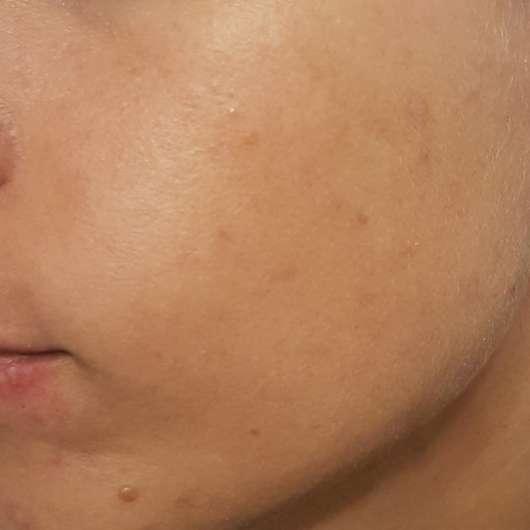 Haut zu Testbeginn - Gertraud Gruber BIOMIMED® Mizellen Reinigungswasser