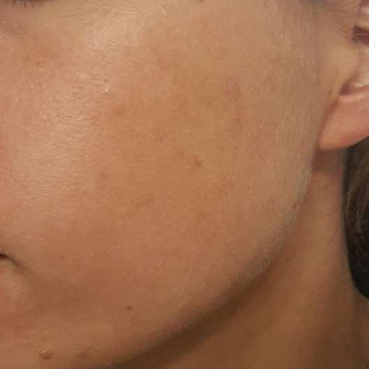 Haut nach 4-wöchigem Test - Gertraud Gruber BIOMIMED® Mizellen Reinigungswasser