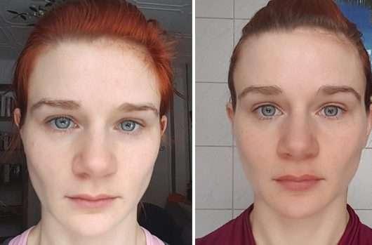 Haut zu Testbeginn (links) // nach 4-wöchigem Test (rechts)