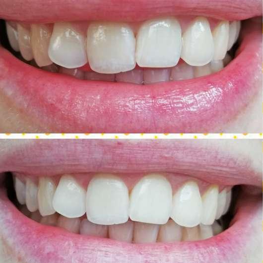 Zähne vor dem Test / nach dem Test der Nu Skin AP-24 Whitening Fluoride Zahncreme