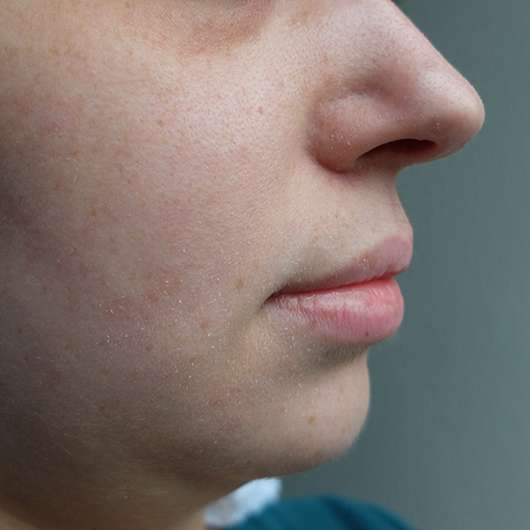 Hautbild vor der Testphase
