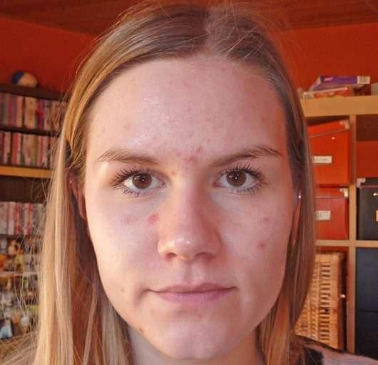 Haut nach 4 Wochen (eingezogenes Serum)