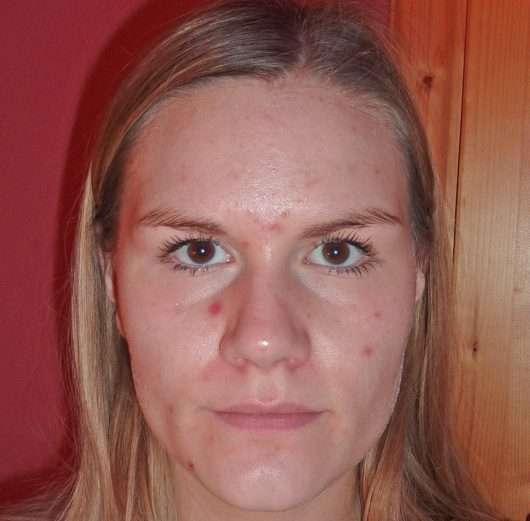 Haut nach 4 Wochen (frisch aufgetragenes Serum)