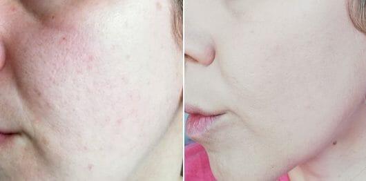 Haut ohne Foundation (links) // mit Foundation (rechts)