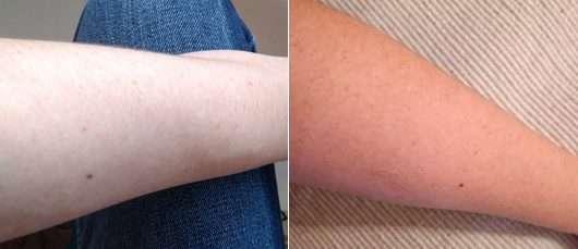 Haut vor der Testphase (links) // nach 4-wöchigem Test (rechts) - medipharma cosmetics Hyaluron Hydro-Lotio