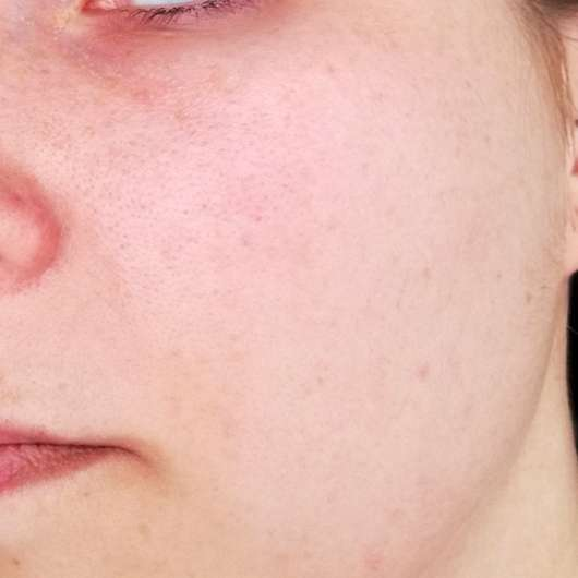 Alcina UV Control Serum SPF 25 - Hautbild nachher
