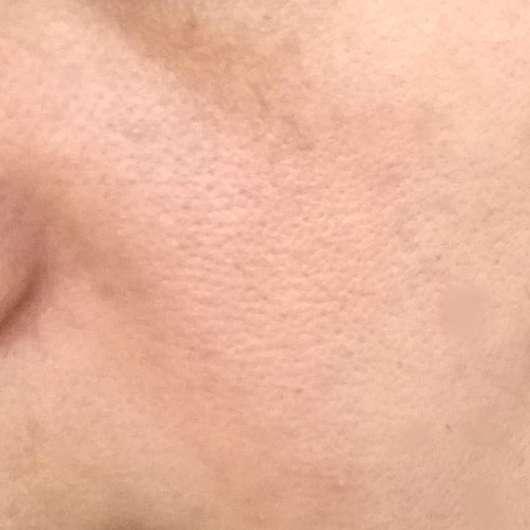 Haut zu Testbeginn - CMD Naturkosmetik Rio de Coco Verwöhnende Gesichtscreme