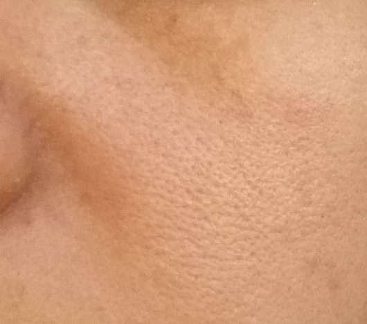 Haut nach 4-wöchigem Test - CMD Naturkosmetik Rio de Coco Verwöhnende Gesichtscreme