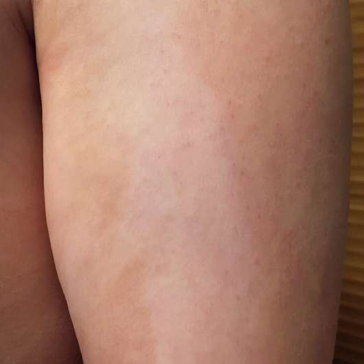 fleckige Stelle am Arm