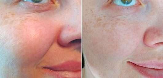 Haut zu Testbeginn (links) // nach 4-wöchigem Test (rechts) - frei öl ReinigungsÖl & Maske