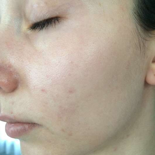 Haut zu Testbeginn - Neutrogena Skin Detox 2-in-1 Feuchtigkeitscreme
