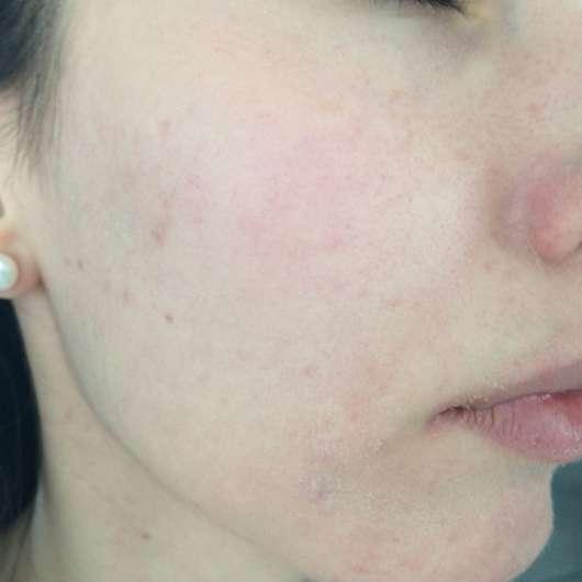 Haut nach 4-wöchigem Test - Neutrogena Skin Detox 2-in-1 Feuchtigkeitscreme