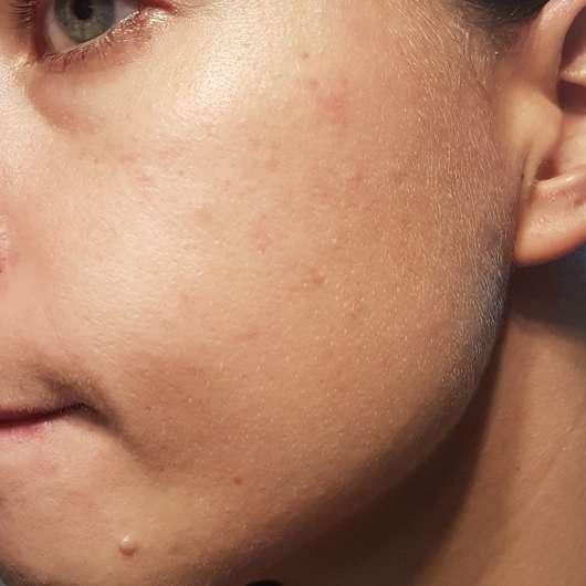 Schaebens Erdbeer Peeling Maske - Haut nach der Anwendung