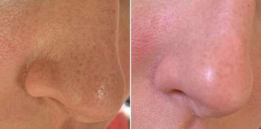 Nase vor dem Test (links) // nach dem Test (rechts) - Bioré Zaubernuss Ultra-Tiefenreinigende Clear-Up-Strips