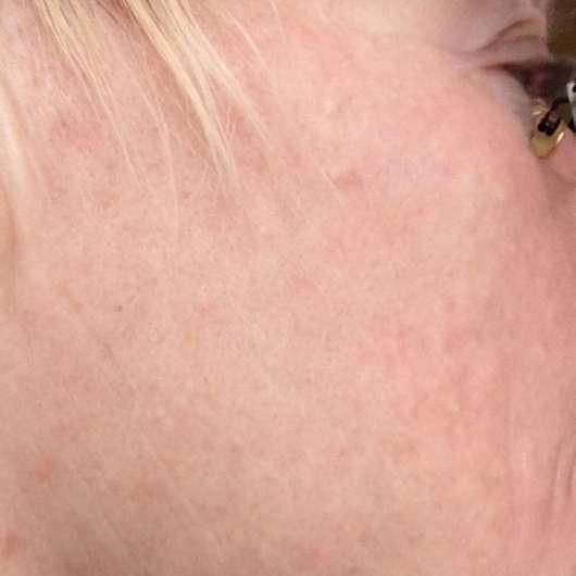 Haut nach 8-wöchigem Test
