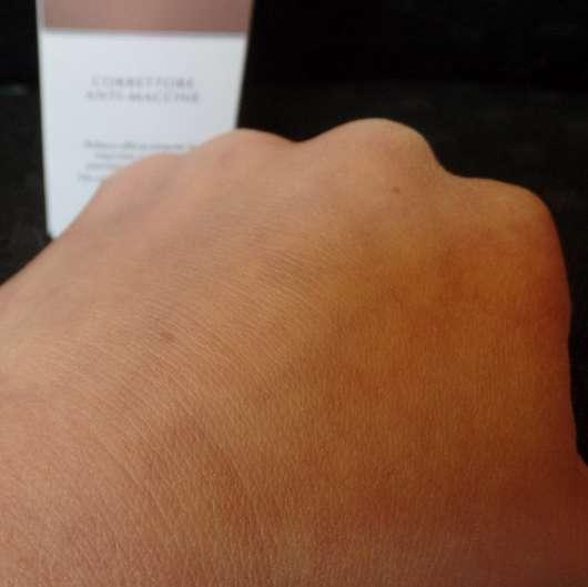 Handrücken zu Testbeginn (Pigmentfleck in der Mitte links zu sehen)